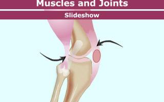 Кости, мышцы и суставы